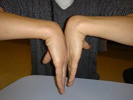 fract artic poignet (5)