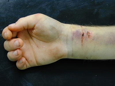 Le site sur le poignet un site sur le poignet pourquoi - Comment se couper les veines pour mourir ...